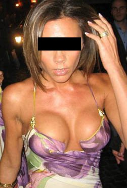 Pictures of bad breast implants